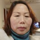 meihua